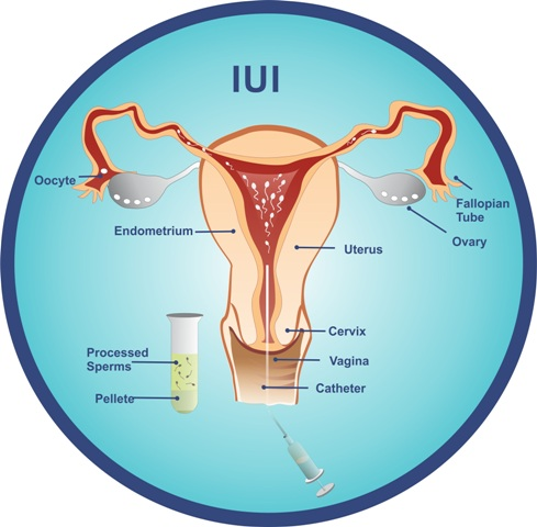 Intra Uterine Insemination