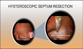 Operative Hysteroscopy (Complex-Septum)